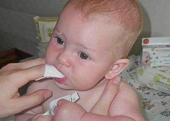 Средства от стоматита для малышей
