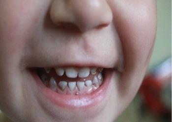 налет присли на зубах у ребенка