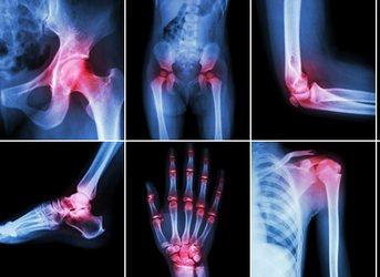 боли в суставах и лечение народными средствами ревматоидного артрита