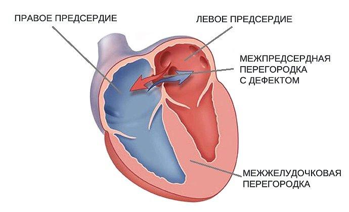 фото открытого овального окна в сердце у ребенка