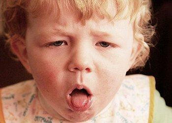 симптомы коклюша у привитых детей