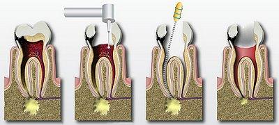 болит зуб после пломбирования каналов