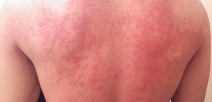 холинергическая аллергическая крапивница у детей и взрослых