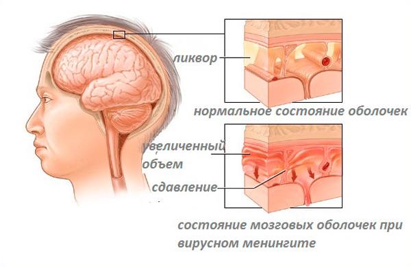 Причина гидроцефалии головного мозга