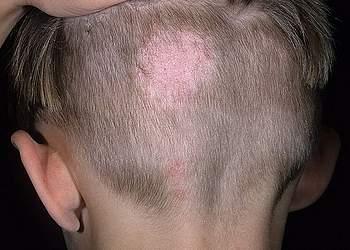 микроспория волосистой части головы