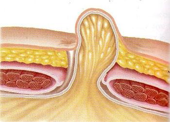 медицинское описание болезни