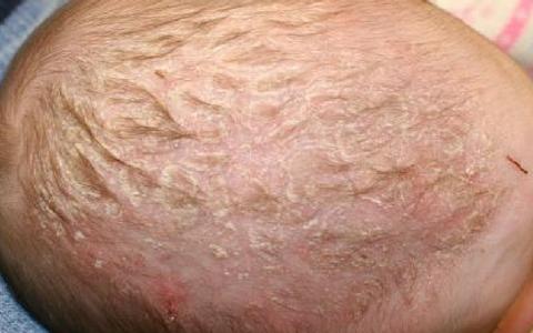 Шелушится кожа у новорожденного на голове, лице и теле