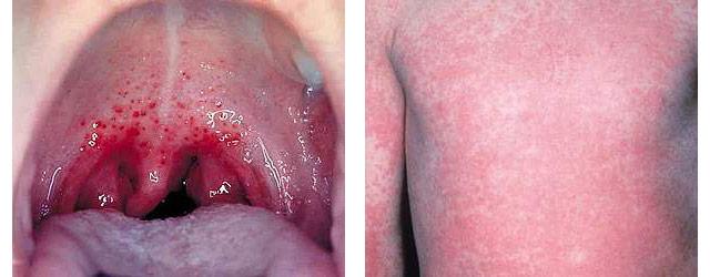 симптомы скарлатины у детей