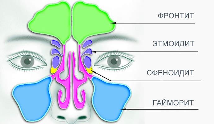 острый и хронический синусит