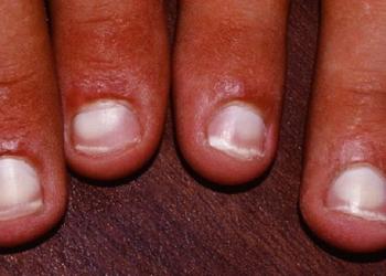 белые пятна на ногтях у ребенка