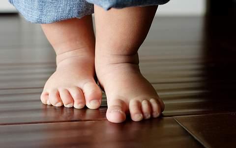 вальгусная деформация стоп у детей