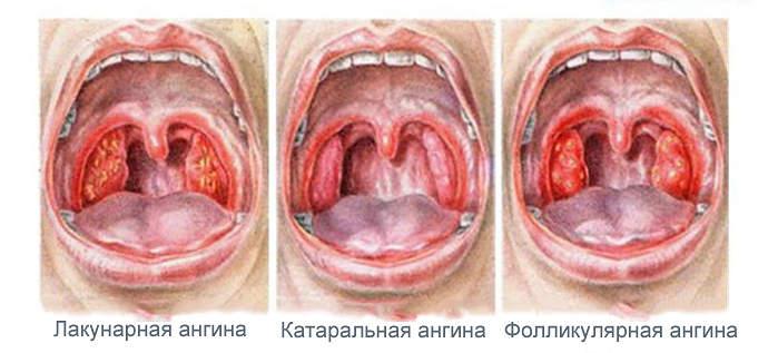 Острый тонзиллит у ребенка - ангина - встречается довольно часто в холодное время года.