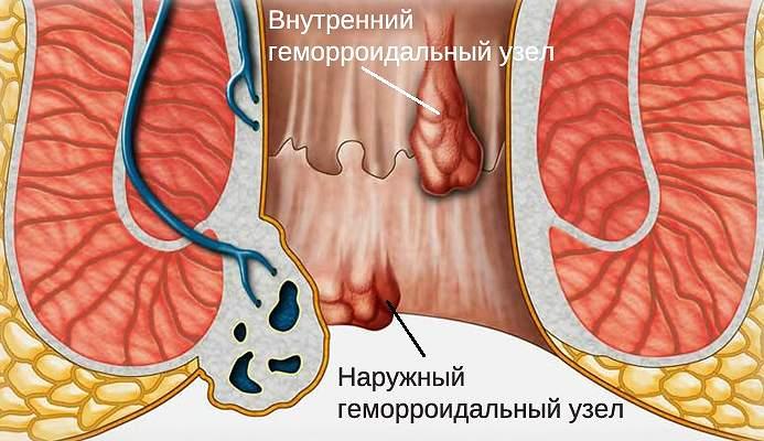 лечение внутреннего и внешнего геморроя при грудном вскармливании