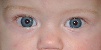 зондирование слезного канала у новорожденного причины